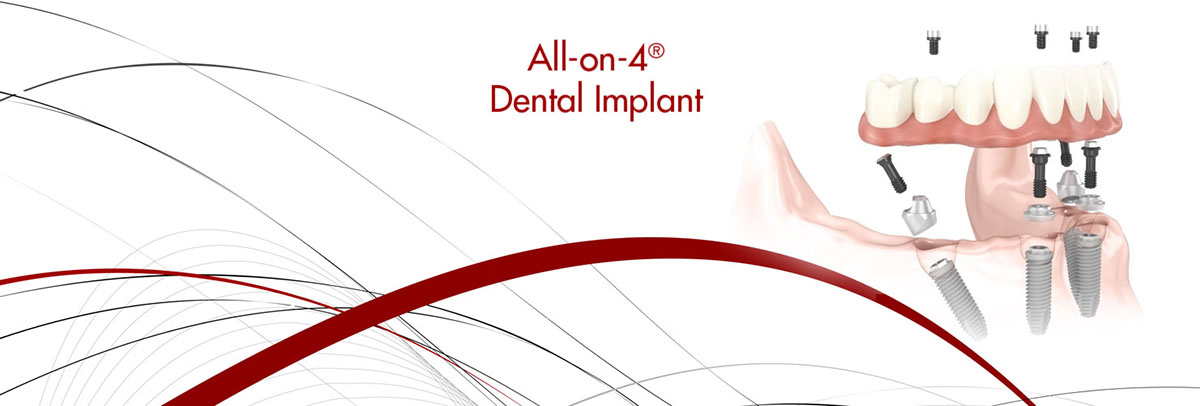 Campbell All-on-4 Dental Implants