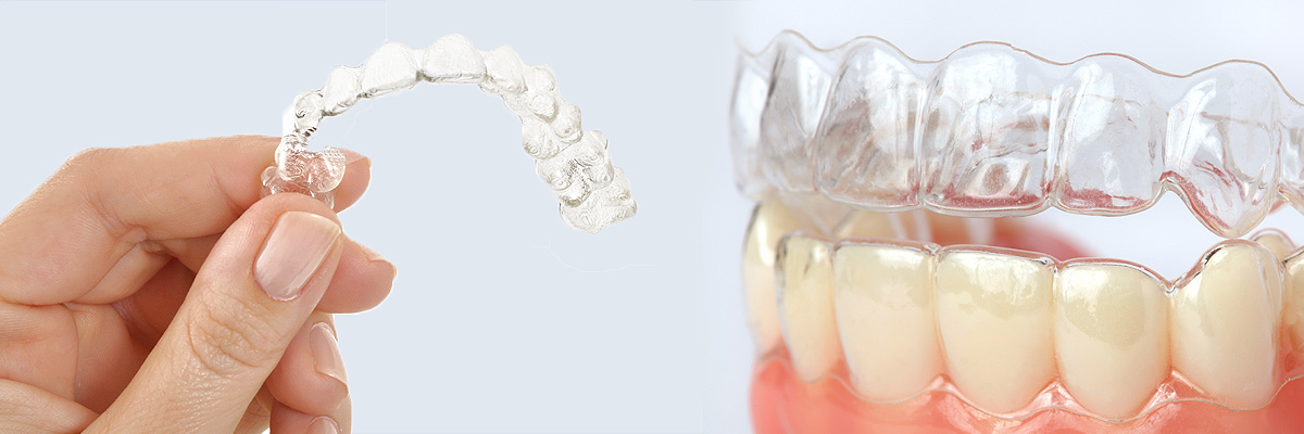 Campbell Alternative to Braces for Teens